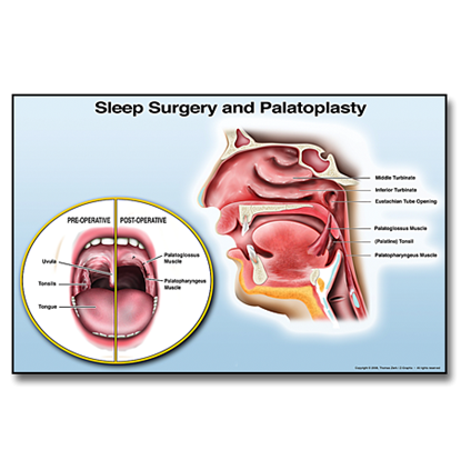 Picture of Sleep Surgery and Palatoplasty Chair