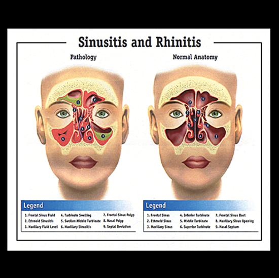 Sinusitis Amp Rhinitis Chart Your Store