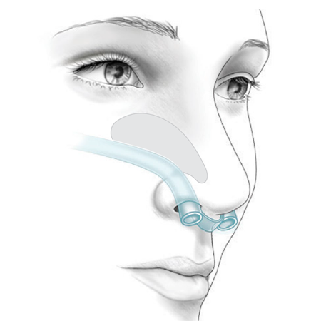 Picture for category Post-op Nasal Airway